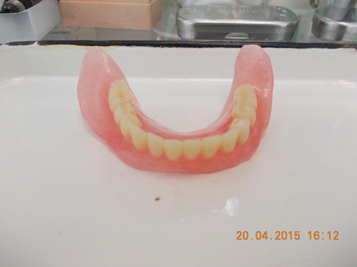 Съемный протез на нижние жевательные зубы